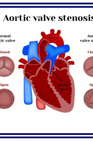 Here's what you need to do if you suffer from Aortic Valve Stenosis.