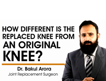 Difference between replaced knee and original knee.