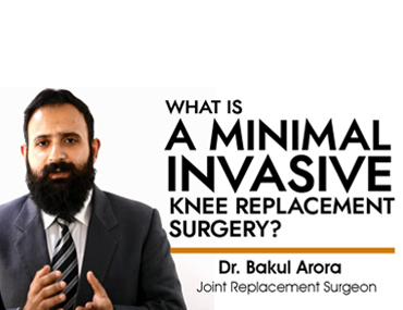 Knee Replacemnet Surgery by Dr. Bakul Arora (Joint Replacement Surgeon)