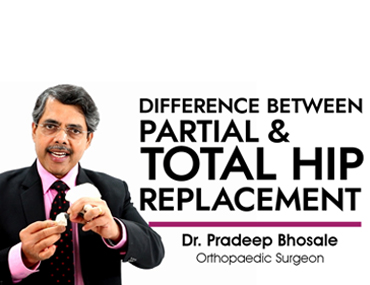 Difference between Partial & Total Hip Replacement Surgery - Dr. Pradeep Bhosale (Orthopaedic Surgeon)