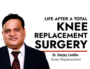 Life after a Total Knee Replacement Surgery