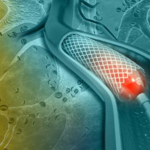 Heart Stents: Why Do You Need Them And For How Long?