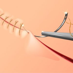 SURGICAL SUTURES- ALL YOUR QUERIES ANSWERED